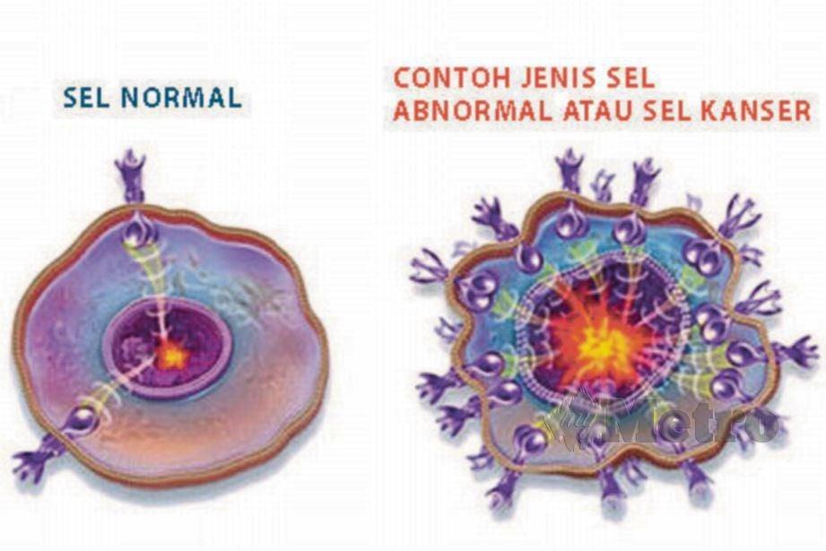 PERBANDINGAN sel normal dan tidak normal.