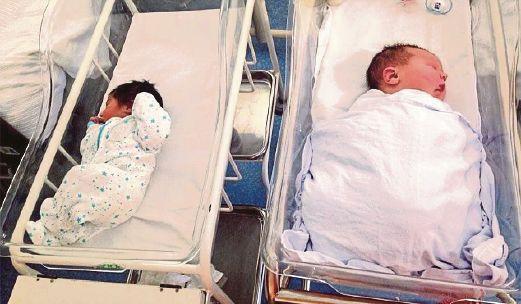 PERBEZAAN anak Breanna (kanan) dengan bayi normal.