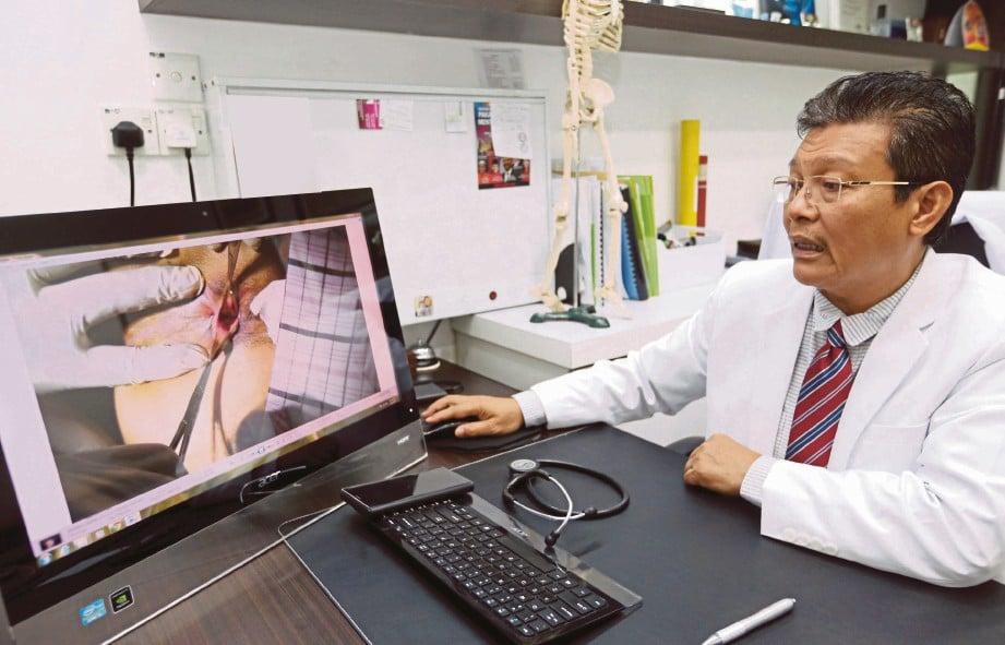 DR Zulkafperi menunjukkan rawatan membuang tisu buasir menggunakan teknik safute beim.