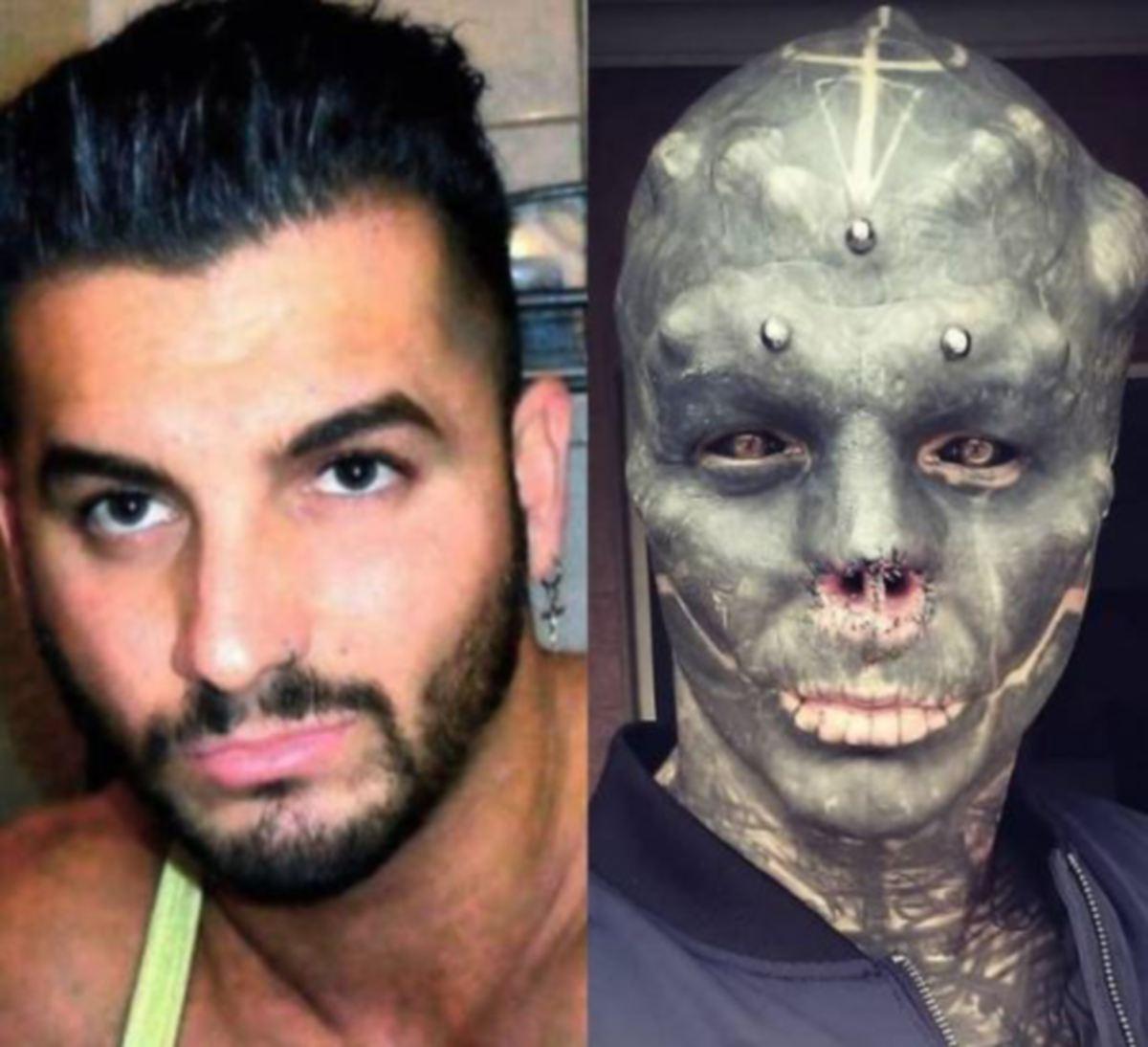 LOFFREDO sebelum dan selepas menjadi mengubah wajahnya. FOTO Agensi