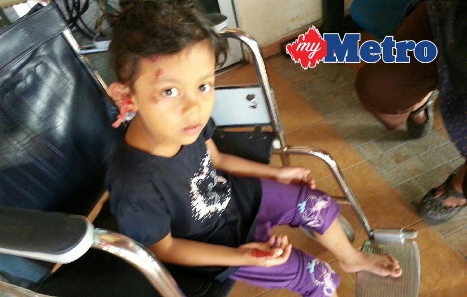 PUTERI Aishah Azaharah cedera di kepala dan telinga. FOTO Shamsudin Husin
