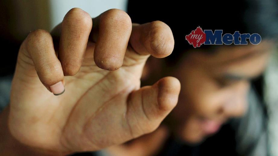 MANGSA mercun, Muhammad Rizaimie Zamri, 18, kehilangan empat jari tangan kanan akibat bermain mercun bola tiga tahun lalu. FOTO Nik Abdullah Nik Omar
