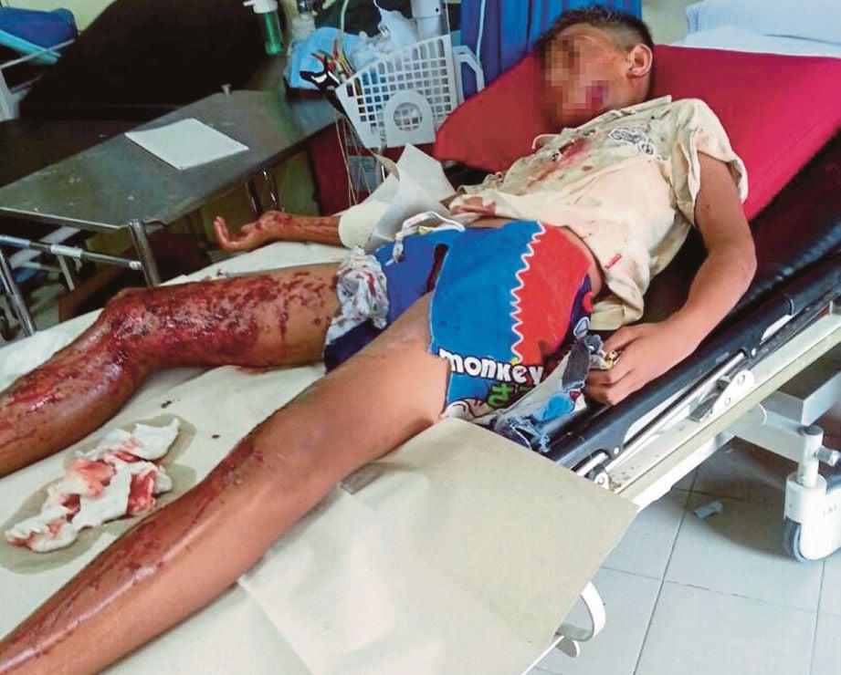 MANGSA yang cedera di kaki, tangan dan kepala  dirawat di HRPZ II.