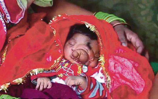 Bayi cacat didakwa jelmaan dewa