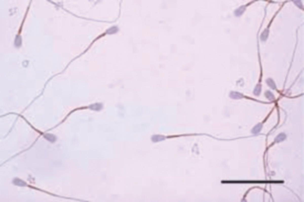 KESAN berbasikal menyebabkan sperma bergerak tanpa hala tuju.