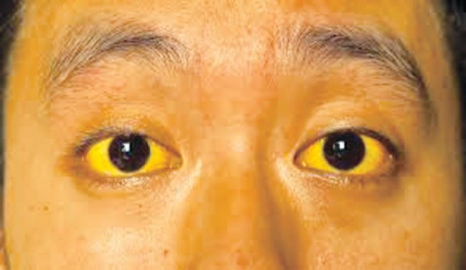 WARNA kuning pada mata putih adalah gejala hepatitis B.