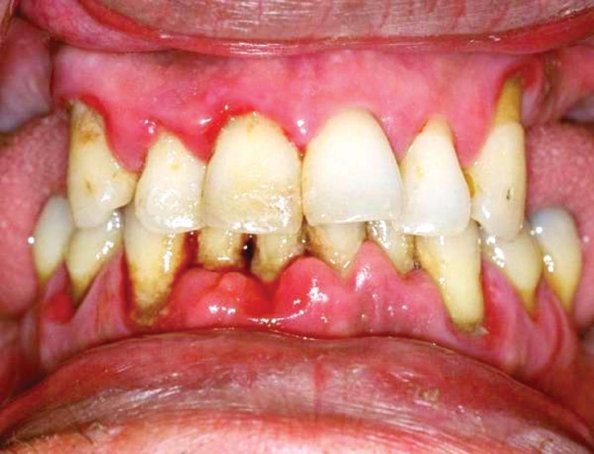 JANGKITAN gigi yang teruk meningkatkan risiko dengan penyakit injap jantung serius.