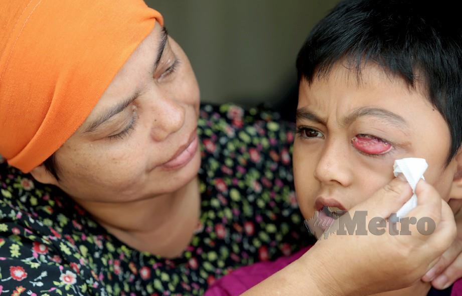 SAMSIAH membersihkan mata anaknya yang menghidap kanser mata tahap empat. FOTO Fathil Asri
