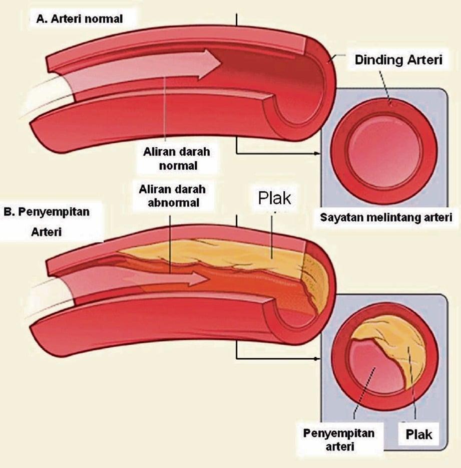 BERLAKU akibat plak berlemak terkumpul dalam arteri.