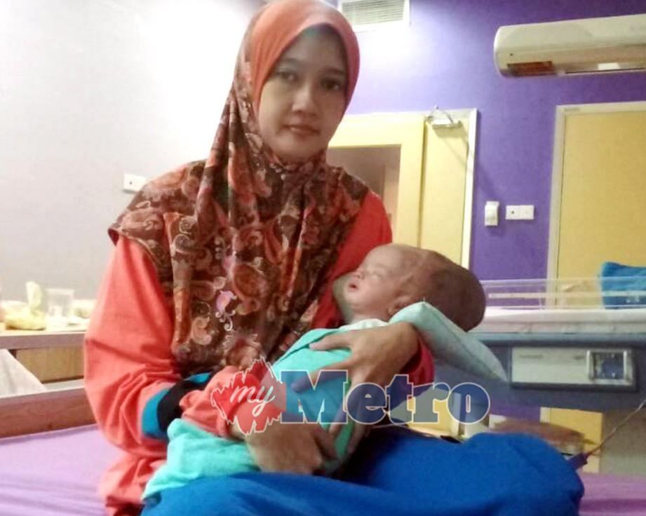 MARDIAH Ahmad Mokhtar memangku anaknya, Siti Nur Aafiyah Roslan berusia sebulan yang menghidap masalah kepala besar ketika menerima rawatan di Pusat Perubatan Universiti Malaya (PPUM). FOTO Shahrinnahar Latib