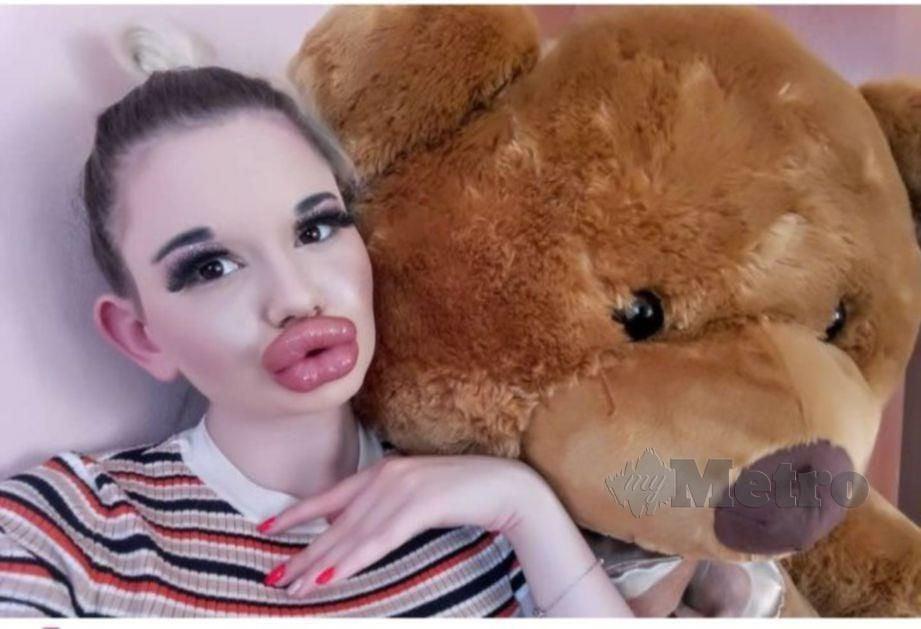 KEADAAN bibir Andrea terkini. FOTO Agensi.