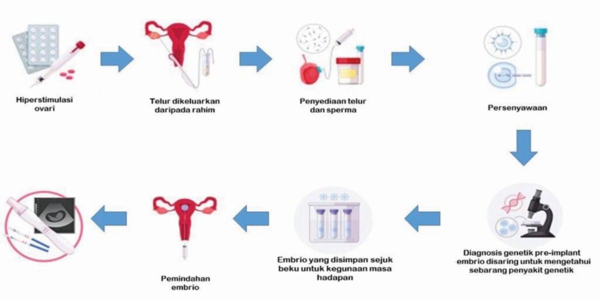 GAMBAR rajah proses IVF.