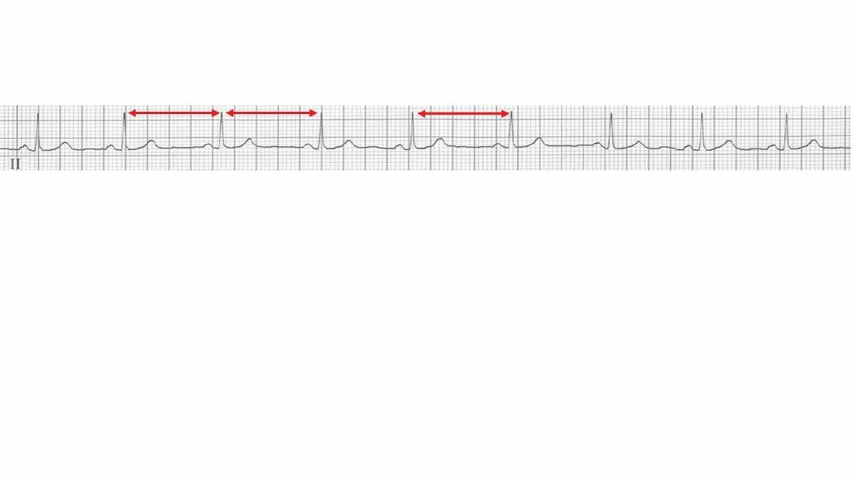 BACAAN ECG normal.