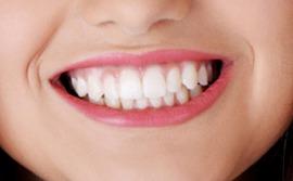 Risiko Rendah Pemutihan Gigi Harian Metro