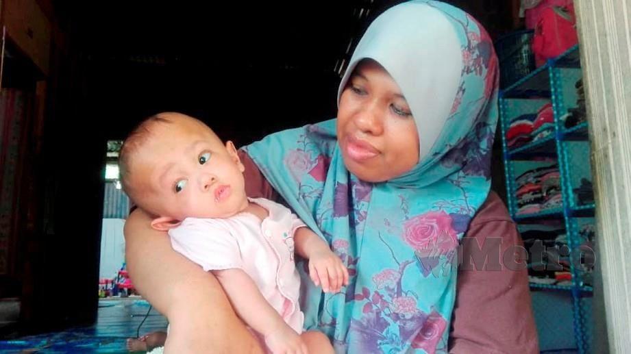 NIK Ishazalwani Ismail, 35 mendukung anak bongsu dari tiga beradik, Nur Fikriyah Elias berusia sembilan bulan yang mengalami lebihan cecair dalam kepala atau Hydrocephalus ketika ditemui di rumahnya di Kampung Alor Melaka. FOTO Hazira Ahmad Zaidi