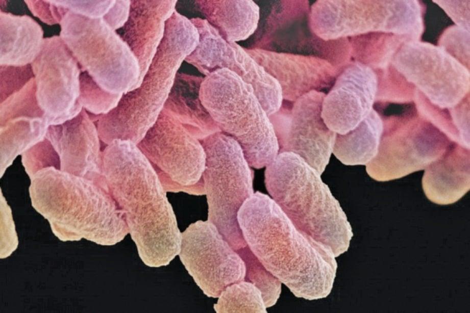BAKTERIA mikrobakterium tuberkulosis ejen penyebab tibi.