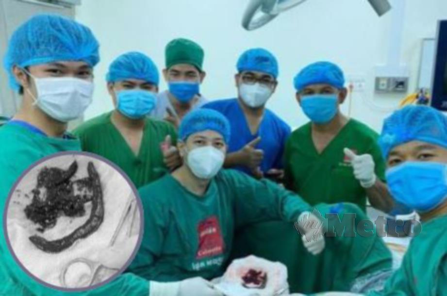 PASUKAN perubatan Hospital Calmette mengeluarkan lintah daripada badan mangsa.