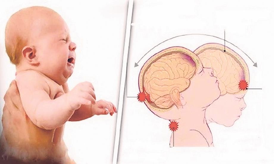 GONCANGAN boleh menyebabkan bayi mengalami pendarahan subdural.