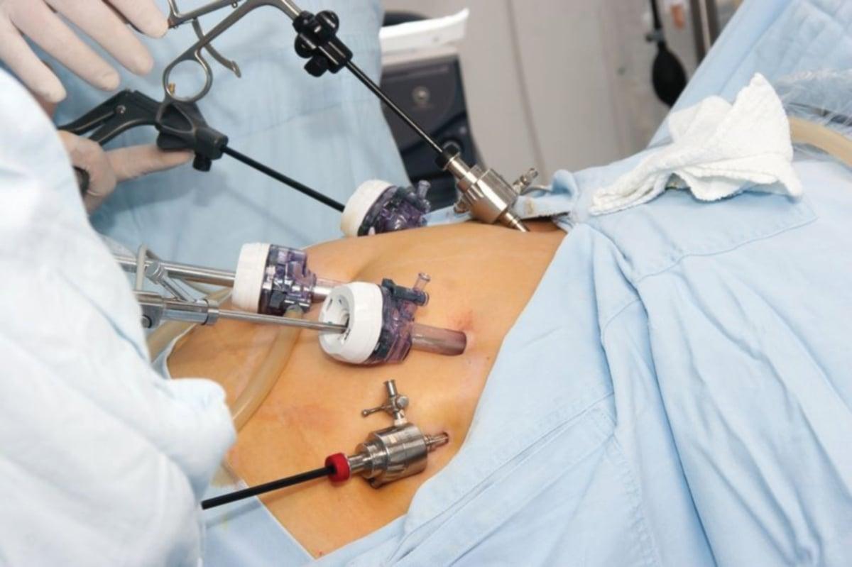PROSEDUR bariatrik melalui kaedah pembedahan laparoskopik