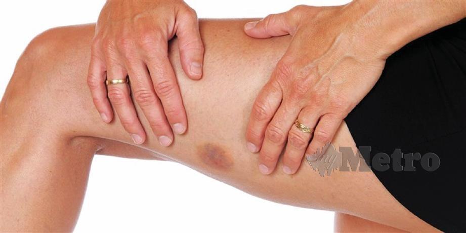 SERING berlaku pada anggota tubuh kerap bersentuhan seperti kaki dan tangan.