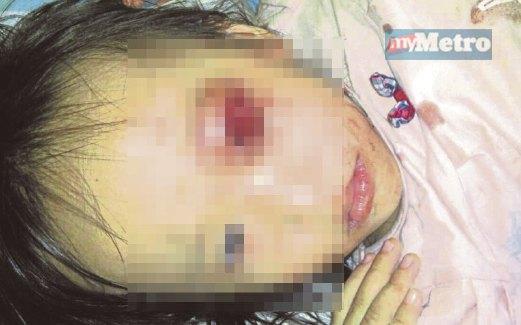 Kanak kanak cedera terkena tembakan guli