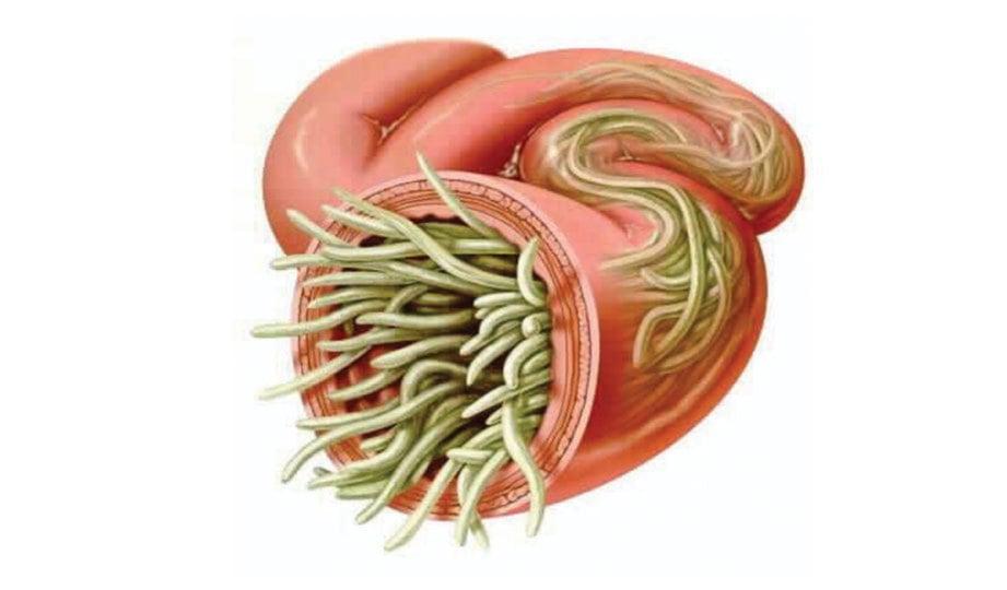 GAMBARAN cacing gelang dalam usus.