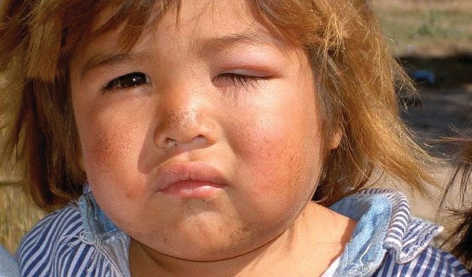 GIGITAN serangga triatomine menyebabkan kelopak mata bengkak.