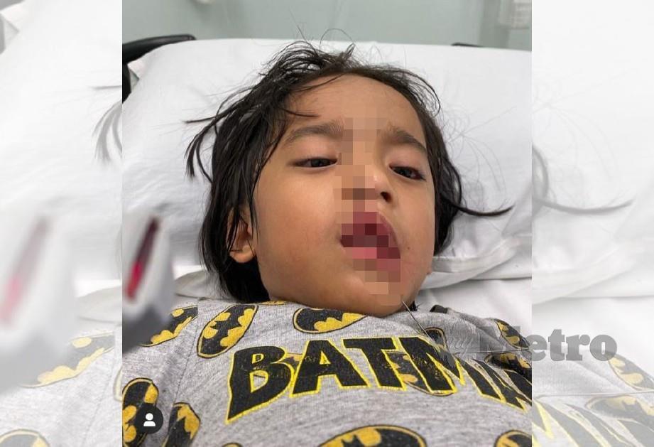 KEADAAN anak Fad yang besi tertusuk gusi. FOTO instagram @syaheerarahman