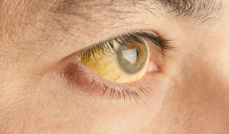 MATA berwarna kuning atau jaundis tanda penyakit hati.