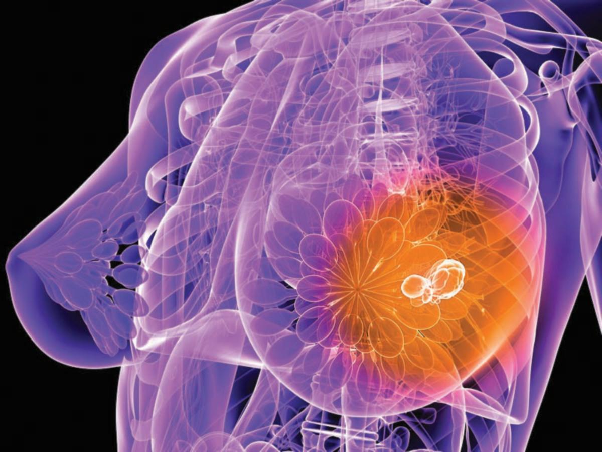 MAMPU mengekang pertumbuhan tumor pesakit kanser payudara.