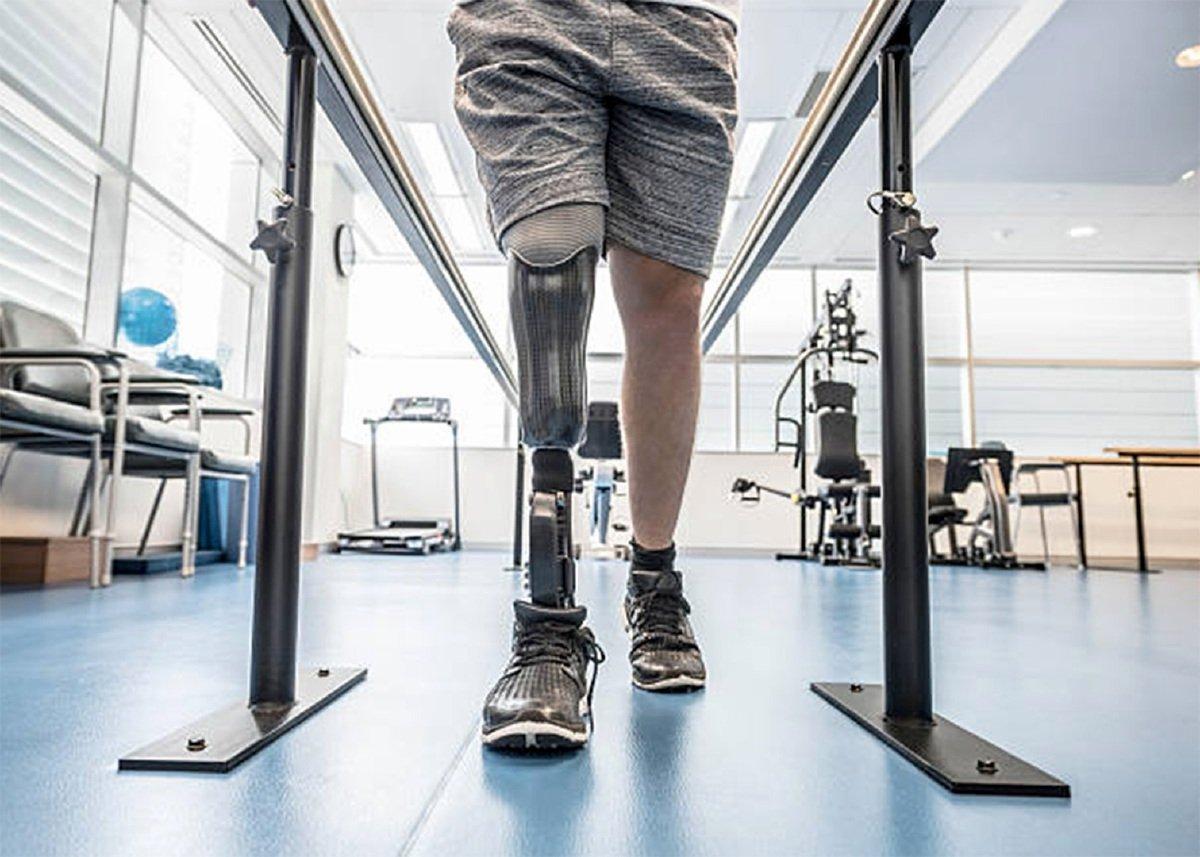PENGGUNAAN kaki palsu supaya pesakit boleh berjalan semula. - FOTO Google