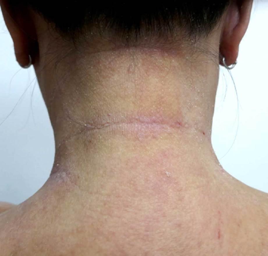 RUAM merah dan gatal penyakit ekzema pada badan pesakit.