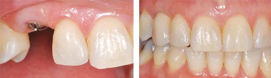 AKAR gigi ditanam. SEBELUM (kiri) dan selepas implan. 3fcc165dd6