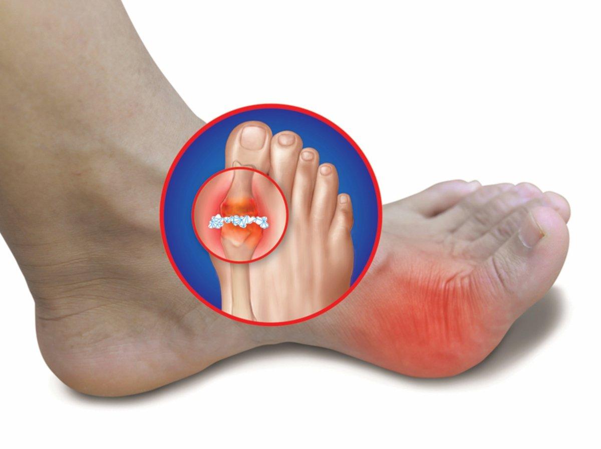 SERANGAN gout boleh dialami dalam bentuk rasa sakit yang kuat dan sendi yang membengkak atau kejang, terutama pada ibu jari kaki.