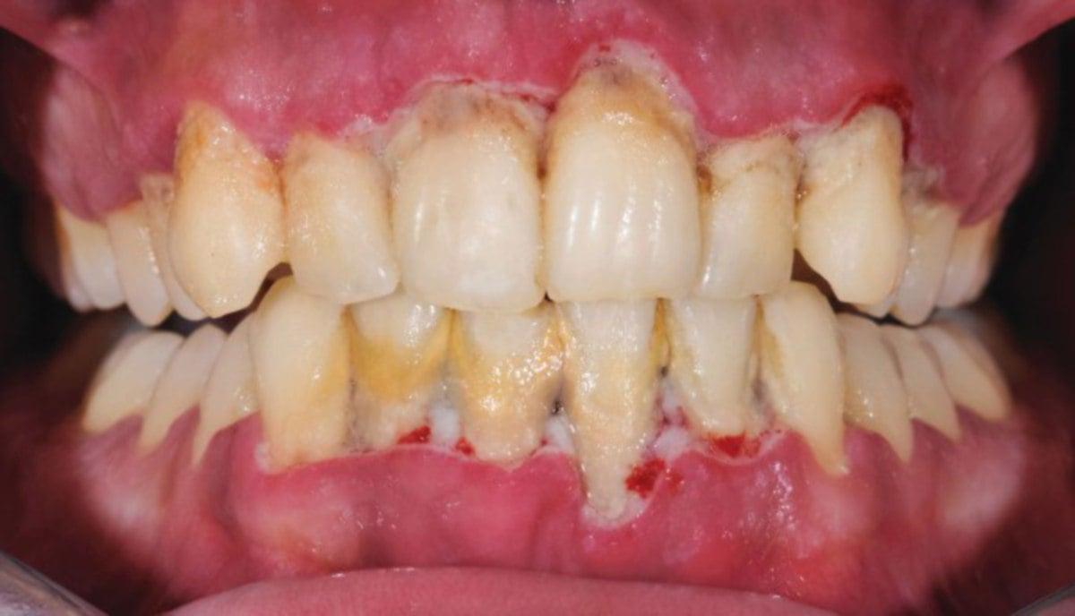 PERIODONTITIS boleh menyebabkan gigi goyang dan tercabut sendiri. - FOTO Google