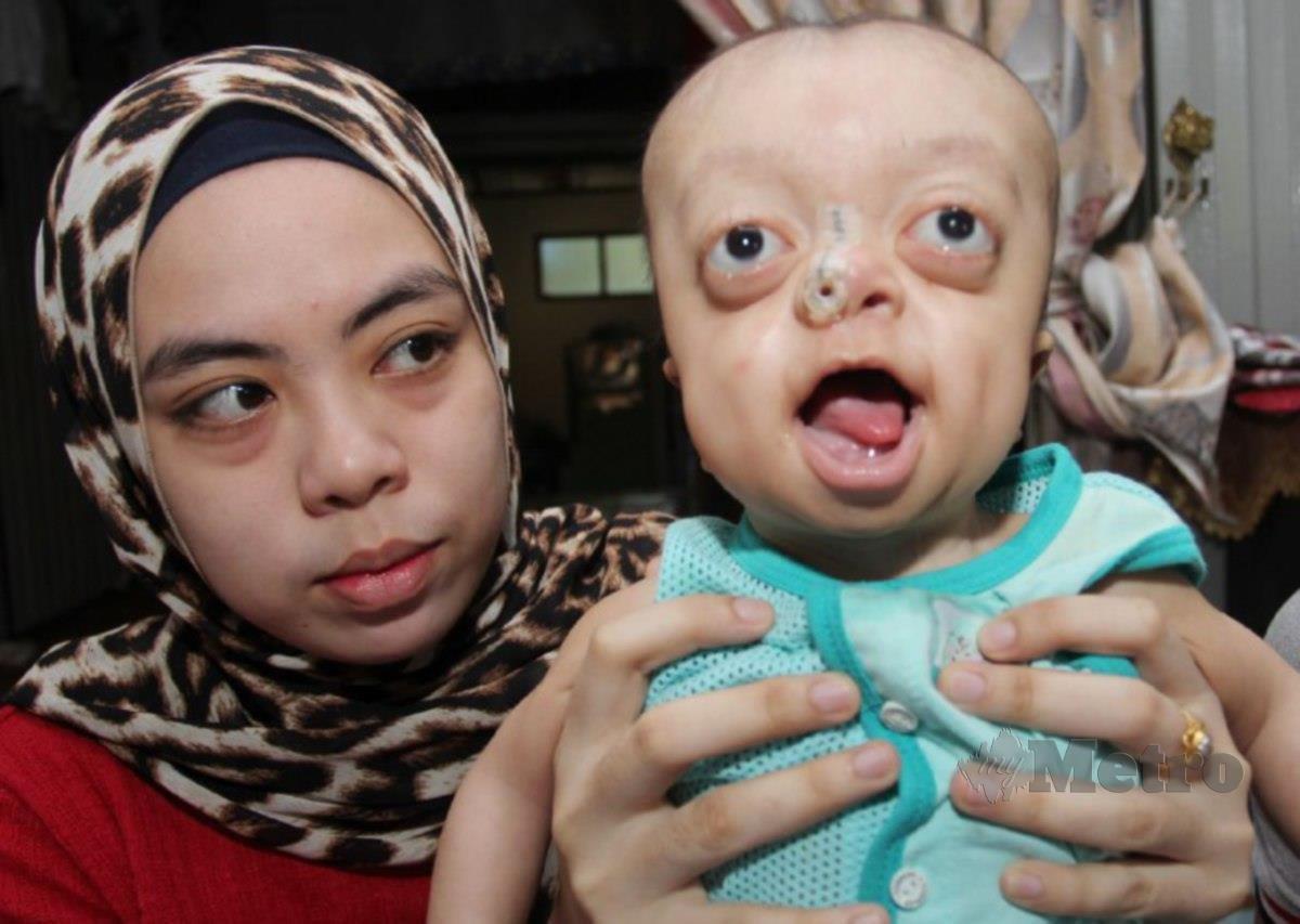 Nor Akma Aini bersama Muhammad Hafiy Affan yang disahkan mengidap sindrom Pfeiffer di Kampung Tebing Tinggi, Pengkalan Chepa di Kota Bharu. Foto Nik Abdullah Nik Omar