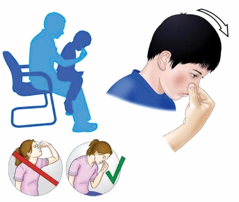 LAKUKAN kaedah betul apabila anak hadapi pendarahan hidung.