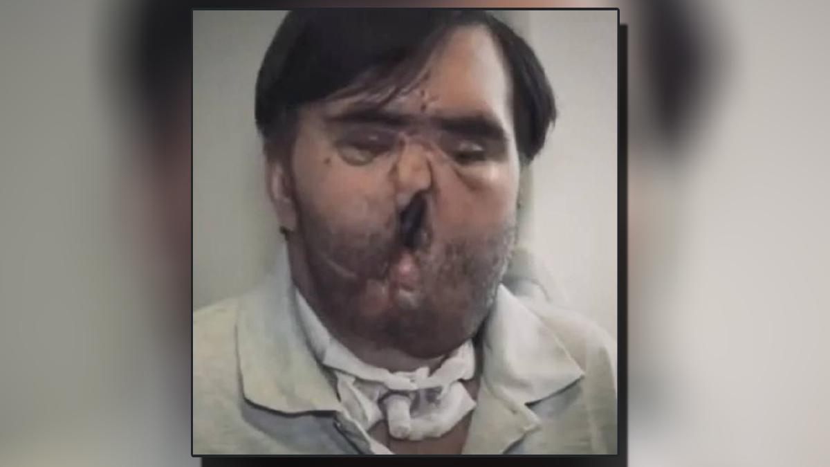 VLADIMIROV terselamat tetapi terpaksa hidup dengan wajah cacat. FOTO Agensi