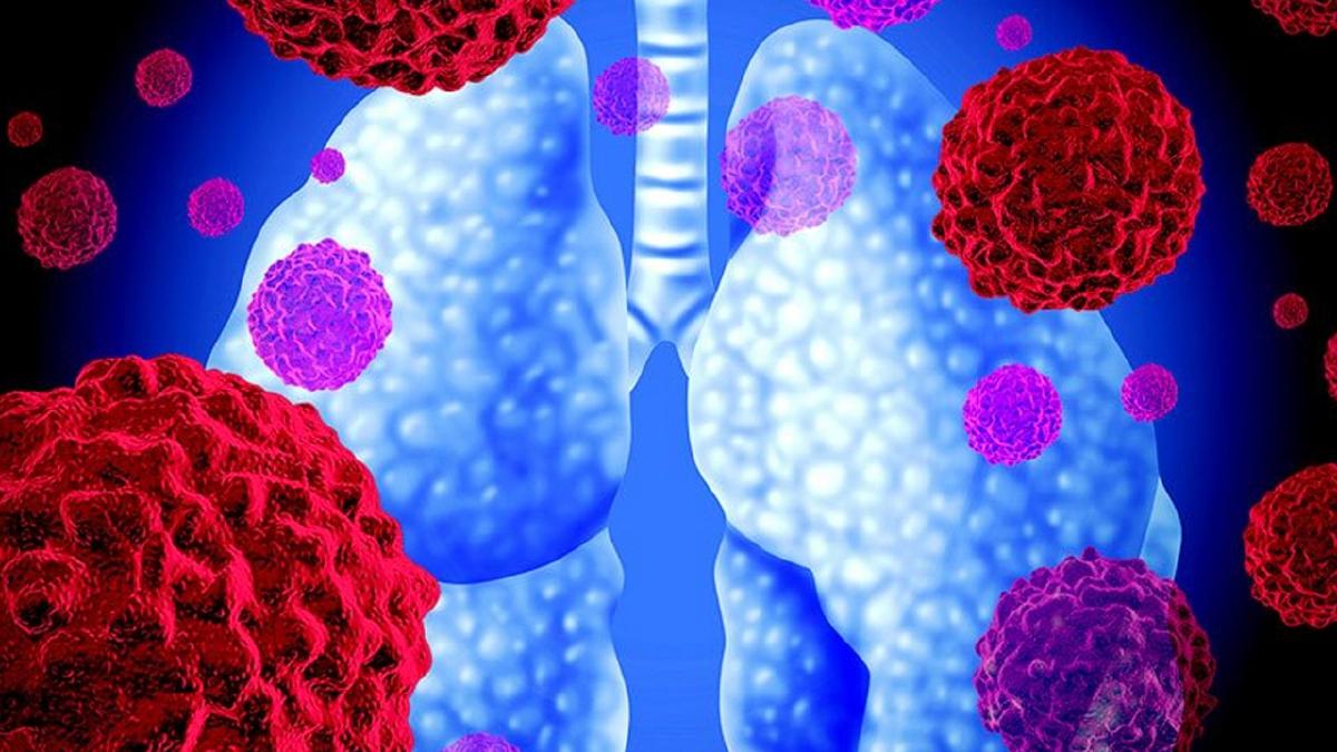 RAWATAN imunoterapi.