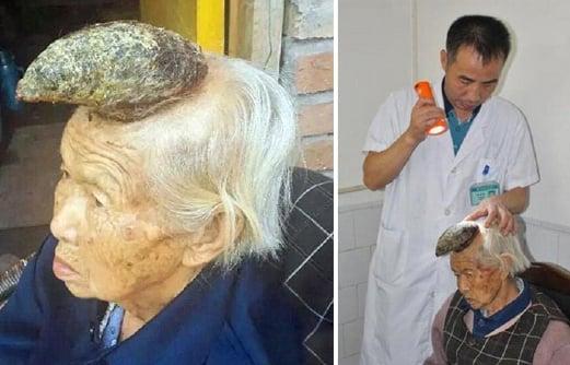 Keadaan tanduk yang tumbuh di kepala Liang Xiuzhen, 87, dari Sichuan, China.
