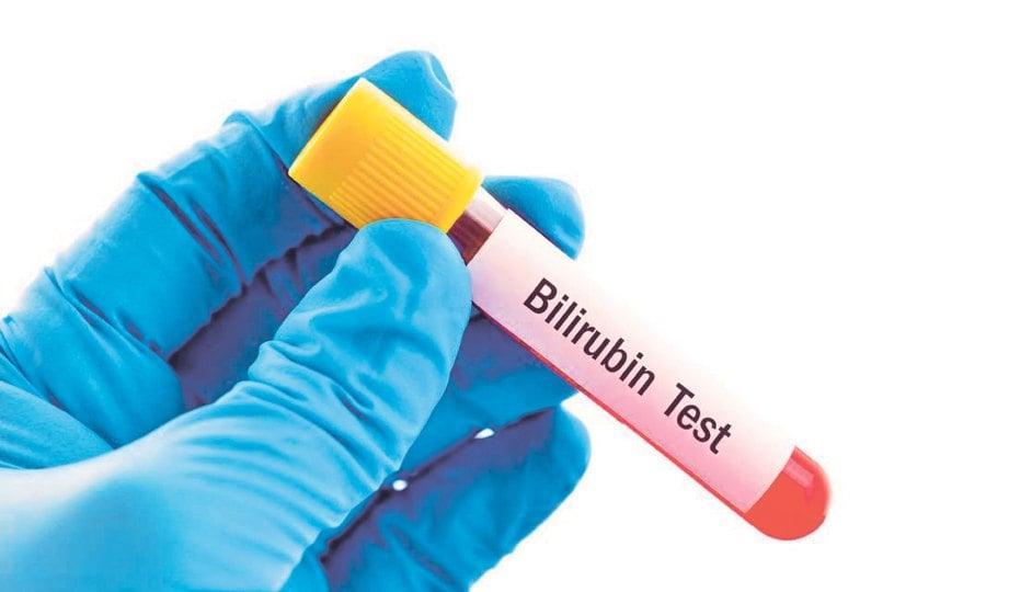RAWATAN fototerapi diperlukan sekiranya paras bilirubin dalam darah bayi tidak berkurang.