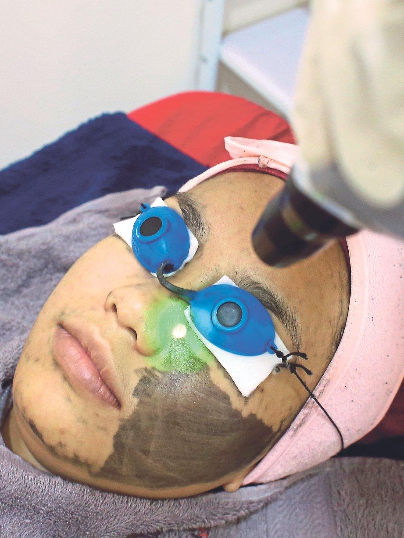 SELEPAS wajah disapu krim karbon laser dihalakan
