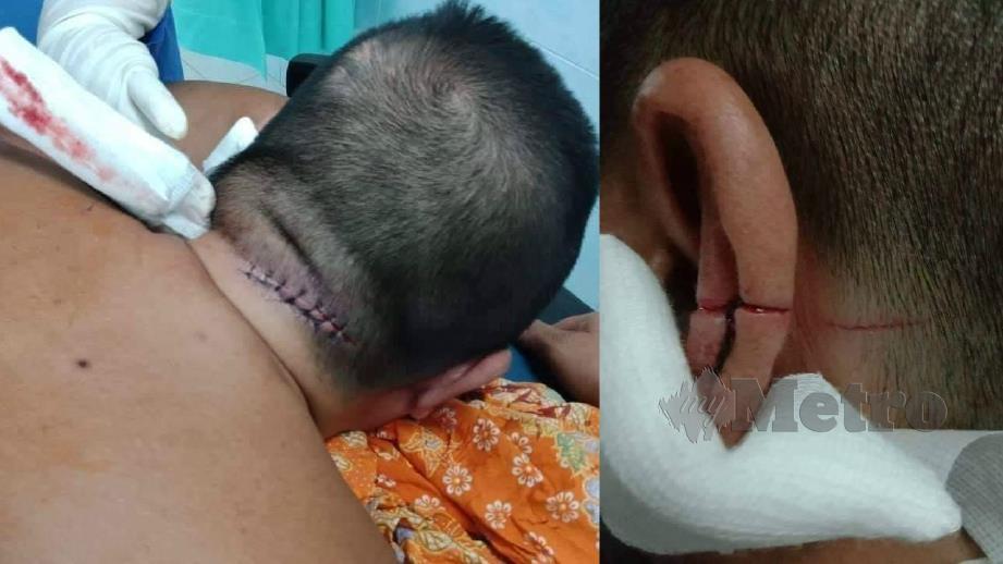 MANGSA menerima beberapa jahitan di belakang kepala dan telinga (gambar kanan) selepas dikelar anak sendiri.