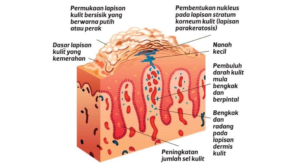 GAMBARAN sel kulit pesakit psoriasis.