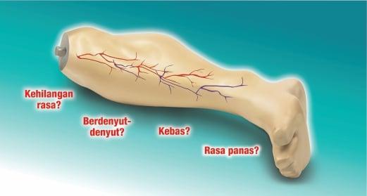 Image result for KERUSAKAN SISTEM SARAF AKIBAT DIABETES