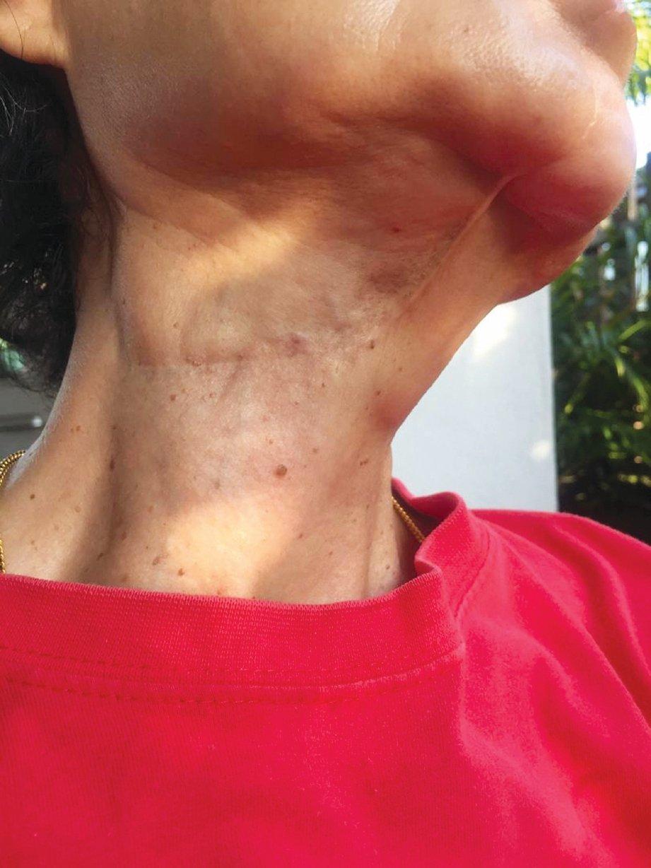 KESAN pembedahan pada leher.