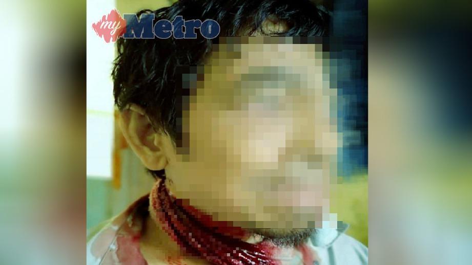 KECEDERAAN pada leher mangsa akibat ditetak dengan pisau pemotong daging dipercayai oleh anak lelakinya, kelmarin. FOTO Ihsan Pembaca