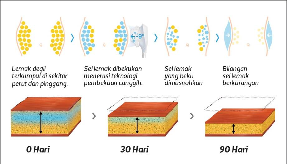 SEL lemak yang beku kemudian disingkirkan melalui proses metabolisme.