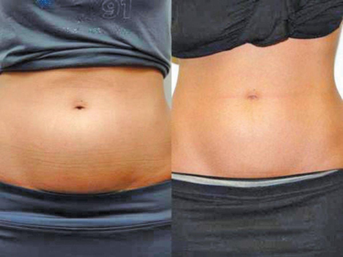 PERUT sebelum sedut lemak (kiri) dan selepas sedut lemak.