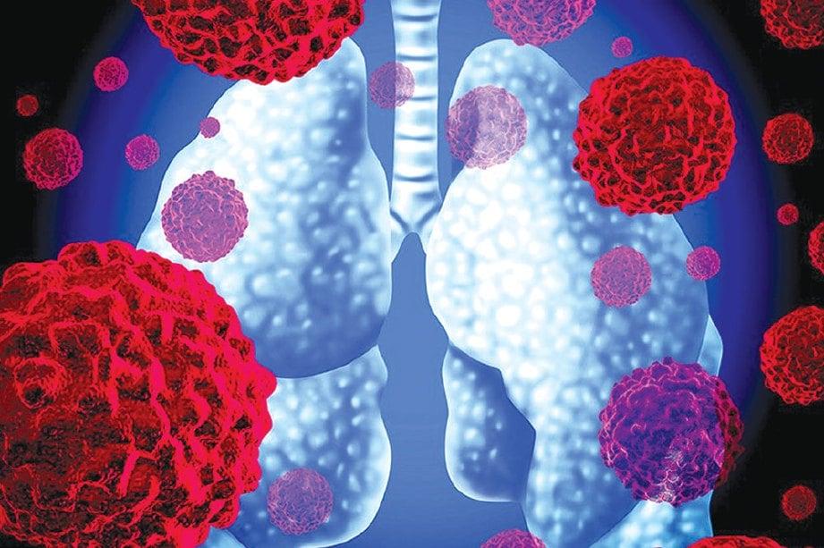 PENGHIDAP barah paru-paru ada harapan hidup lama.